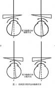 """如何正确测量瞳孔距离——之""""屈光参差"""""""